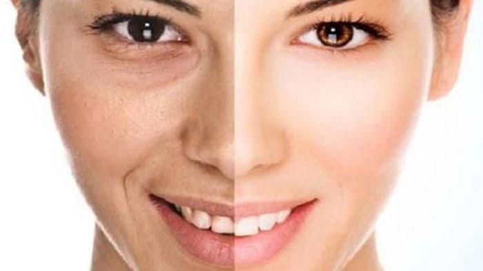4 Cara Mengatasi Wajah Kusam Agar Terlihat Lebih Cerah